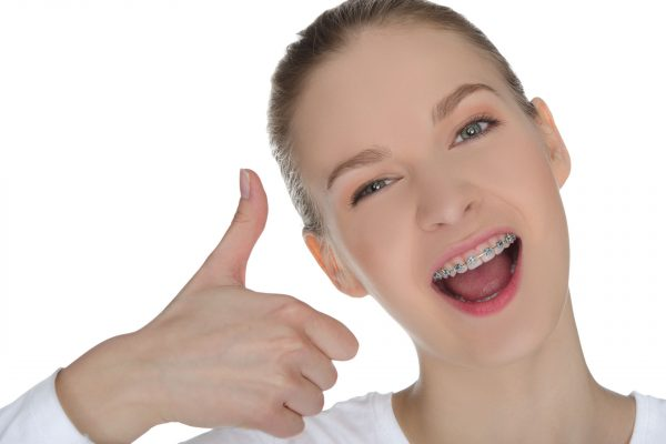 braces 600x400 - Why braces are not just about vanity