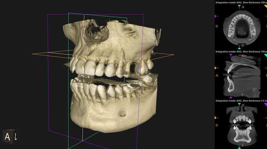 x ray - Dental Exam & Xray